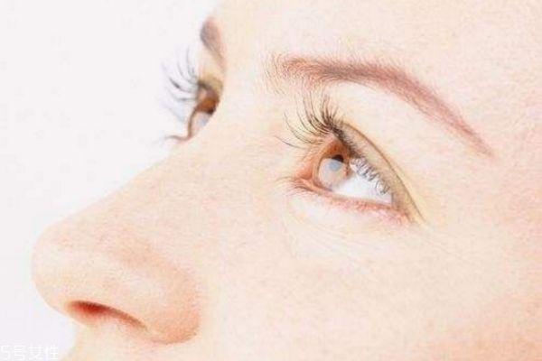 割双眼皮为什么会回缩 全切双眼皮回缩了 割双眼皮为什么会回缩 全切双眼皮回缩了 知识库 第3张