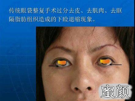 https://img.miyanlife.com/mnt/timg/210226/20110I647-5.jpg 千万不要随便祛眼袋! ——曹博士专利技术三分钟祛眼袋! 知识库 第4张
