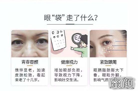 https://img.miyanlife.com/mnt/timg/210226/20105534O-1.jpg 千万不要随便祛眼袋! ——曹博士专利技术三分钟祛眼袋! 知识库 第2张