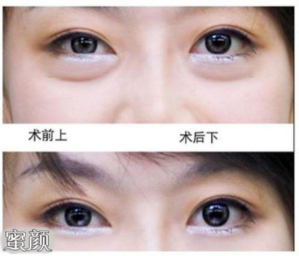 https://img.miyanlife.com/mnt/Editor/2021-02-27/6039b5490eafe.jpg 千万不要随便祛眼袋! ——曹博士专利技术三分钟祛眼袋! 知识库 第7张