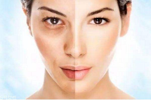 果酸换肤的原理 果酸换肤的优缺点 果酸换肤的原理 果酸换肤的优缺点 知识库 第2张