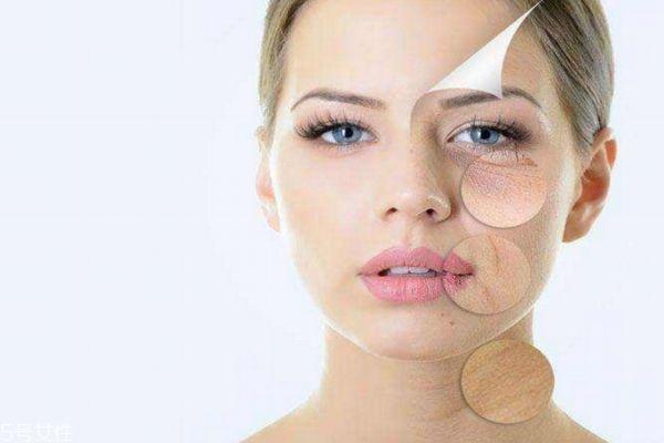 做一次果酸效果明显吗 果酸换肤能维持多久 做一次果酸效果明显吗 果酸换肤能维持多久 知识库 第3张