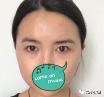 https://img.miyanlife.com/mnt/timg/210227/0923041563-1.jpg 「双眼皮案例」温州和平医院切开双眼皮效果 知识库 第2张