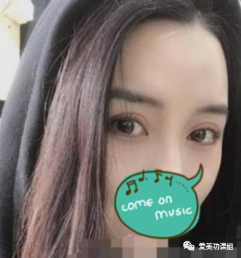 https://img.miyanlife.com/mnt/timg/210227/09230K129-4.jpg 「双眼皮案例」温州和平医院切开双眼皮效果 知识库 第5张
