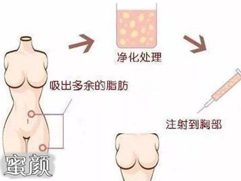 https://img.miyanlife.com/mnt/Editor/2021-02-27/60392185b5b48.jpg 郑州东方女子医院医疗自体脂肪隆胸术后60天分享 知识库 第2张