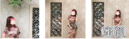 https://img.miyanlife.com/mnt/timg/210225/1ZFa0S-3.jpg 重庆时光医美腰腹吸脂案例分享附效果图! 知识库 第4张