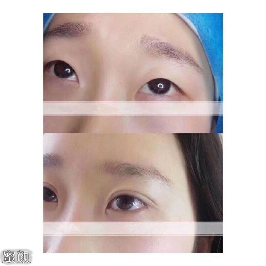 https://img.miyanlife.com/mnt/Editor/2021-02-27/603a37ef63eb6.jpg 泉州爱美者切开双眼皮手术过程及手术效果分享 知识库 第5张