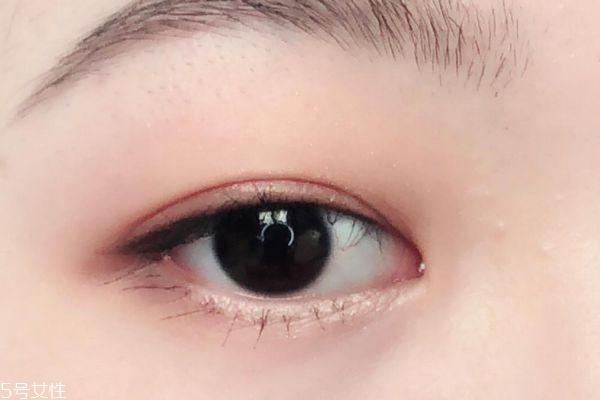 肿眼泡去脂去皮可以不割双眼皮吗 肿眼泡适合的双眼皮 肿眼泡去脂去皮可以不割双眼皮吗 肿眼泡适合的双眼皮 知识库 第4张