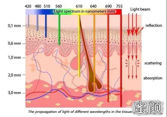 https://img.miyanlife.com/mnt/timg/210227/2053564459-2.jpg 普通的光子嫩肤和M22-AOPT超光子嫩肤究竟有什么区别? 知识库 第3张