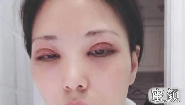 https://img.miyanlife.com/mnt/timg/210227/2104153632-1.jpg 重庆爱思特颌面整形科双眼皮手术恢复过程图 知识库 第2张