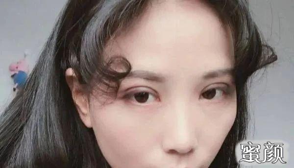 https://img.miyanlife.com/mnt/timg/210227/2104164491-2.jpg 重庆爱思特颌面整形科双眼皮手术恢复过程图 知识库 第3张