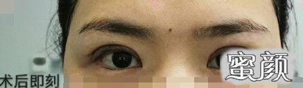 https://img.miyanlife.com/mnt/timg/210226/0J225N28-1.jpg 上海九院范海燕医生全切双眼皮去皮去脂案例 知识库 第4张