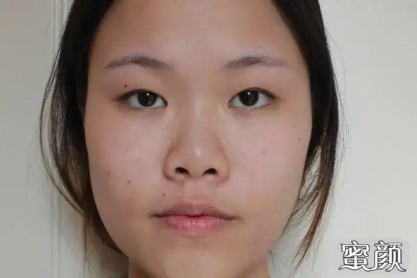 https://img.miyanlife.com/mnt/timg/210226/104552L93-0.jpg 重庆华美颌面整形科双眼皮手术案例分享与效果对比图 知识库 第1张