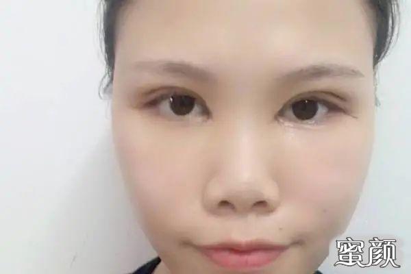 https://img.miyanlife.com/mnt/timg/210226/1045536442-2.jpg 重庆华美颌面整形科双眼皮手术案例分享与效果对比图 知识库 第3张