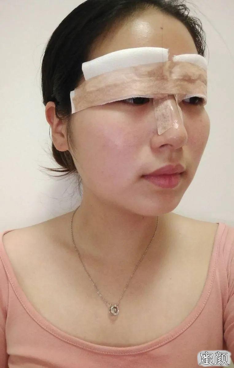 https://img.miyanlife.com/mnt/timg/210226/13020La8-1.jpg 南通康美整形美容医院双眼皮整形恢复过程图 知识库 第2张