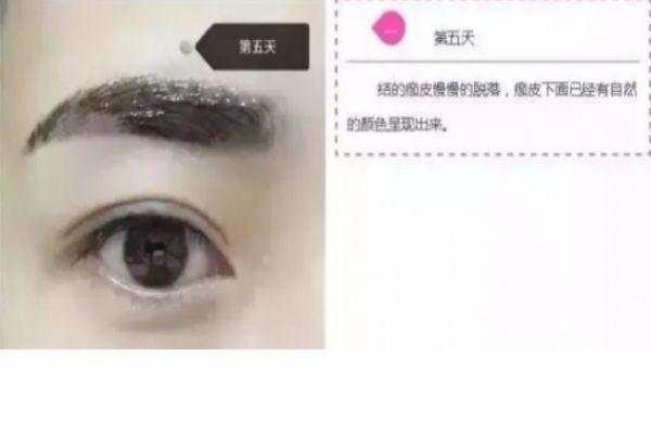 纹眉几天会变细 纹眉七天的变化 纹眉几天会变细 纹眉七天的变化 知识库 第6张