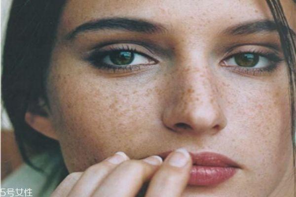 脸上有好多斑怎样祛斑 激光祛斑才够彻底 脸上有好多斑怎样祛斑 激光祛斑才够彻底 知识库 第3张