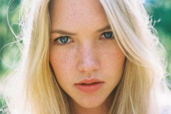 脸上有好多斑怎样祛斑 激光祛斑才够彻底 脸上有好多斑怎样祛斑 激光祛斑才够彻底 知识库 第1张