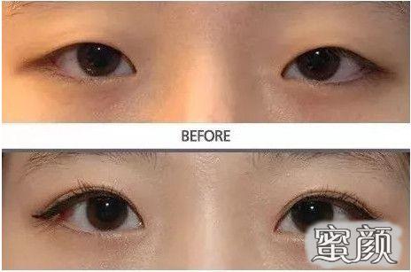 https://img.miyanlife.com/mnt/Editor/2021-02-26/6038a4a092e38.jpg 重庆当代整形双眼皮整形科 切开双眼皮案例分享与效果对比图 知识库 第9张