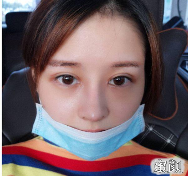 https://img.miyanlife.com/mnt/timg/210226/224453K10-5.jpg 医学美容医院隆鼻恢复状况附对比图 知识库 第6张