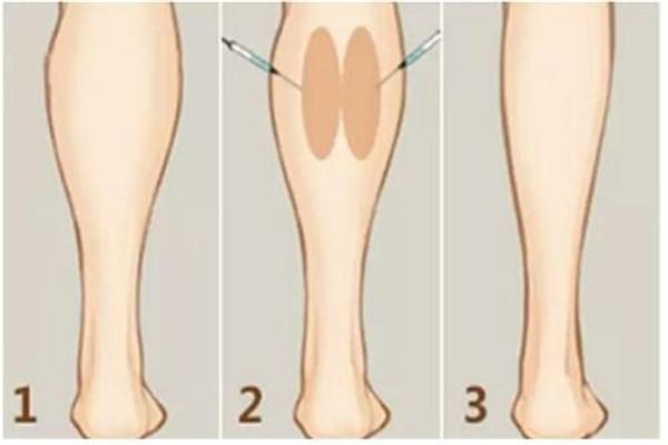 瘦腿针要打几次 瘦腿针最少需要打几次 瘦腿针要打几次 瘦腿针最少需要打几次 知识库 第3张