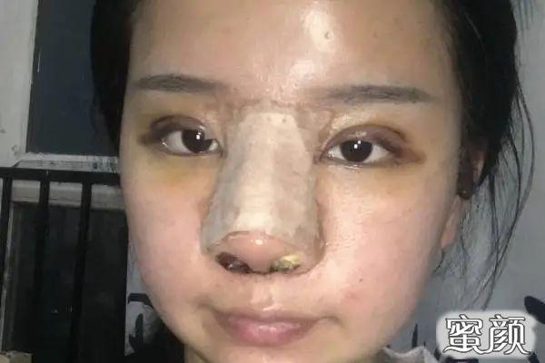 https://img.miyanlife.com/mnt/timg/210225/1933454G7-0.jpg 北京米扬丽格巫文云做鼻子好吗?有案例图吗? 知识库 第2张