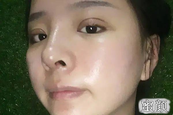 https://img.miyanlife.com/mnt/timg/210225/193345Ob-1.jpg 北京米扬丽格巫文云做鼻子好吗?有案例图吗? 知识库 第3张