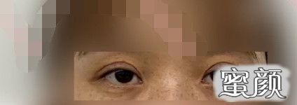 https://img.miyanlife.com/mnt/timg/210225/200F96426-1.jpg 上海九院王梓全切双眼皮手术案例 知识库 第3张