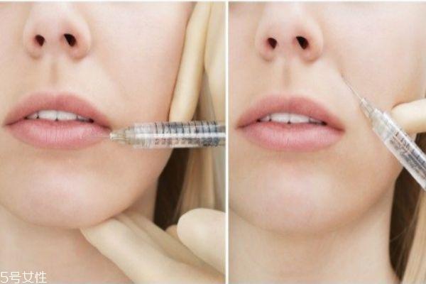 水光针的美肤作用有哪些 水光针的九大功效 水光针的美肤作用有哪些 水光针的九大功效 知识库 第3张
