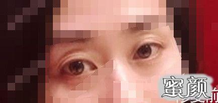 https://img.miyanlife.com/mnt/timg/210224/1944524303-1.jpg 北京常院长双眼皮修复手术案例 知识库 第3张