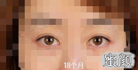 https://img.miyanlife.com/mnt/timg/210224/1944521230-2.jpg 北京常院长双眼皮修复手术案例 知识库 第4张