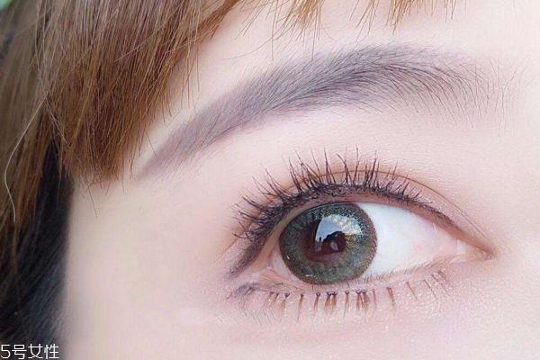 上睑下垂有遗传吗 眼睑下垂的病因 上睑下垂有遗传吗 眼睑下垂的病因 知识库 第2张