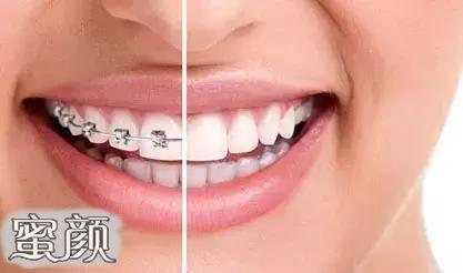 https://img.miyanlife.com/mnt/Editor/2021-02-25/6036eeabe0571.jpg 牙齿矫正的三个最佳年龄段,你知道吗? 知识库 第3张