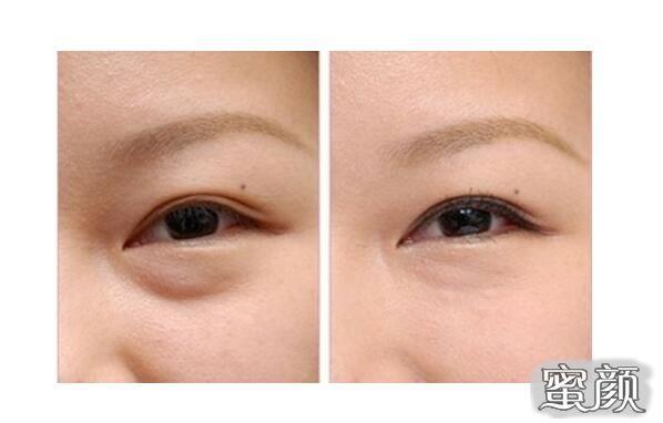 https://img.miyanlife.com/mnt/Editor/2021-02-25/6037120c23ea5.jpg 纯干货来啦!到底哪种去眼袋手术适合你? 知识库 第1张