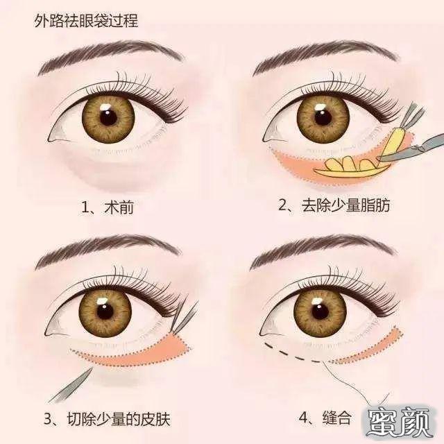 https://img.miyanlife.com/mnt/timg/210225/103P41001-3.jpg 纯干货来啦!到底哪种去眼袋手术适合你? 知识库 第2张