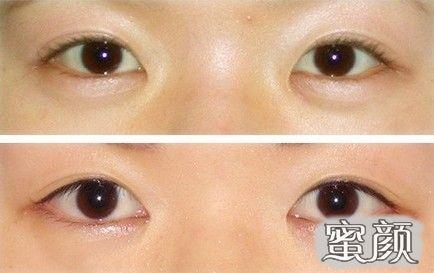 https://img.miyanlife.com/mnt/Editor/2021-02-25/603711ea2ae06.jpg 纯干货来啦!到底哪种去眼袋手术适合你? 知识库 第4张
