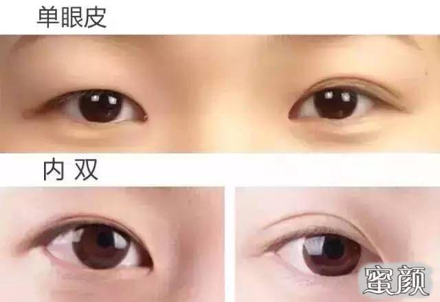 https://img.miyanlife.com/mnt/Editor/2021-02-25/60371bf8a6321.jpg 广州南方医院双眼皮手术恢复过程图 知识库 第1张