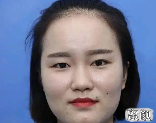 https://img.miyanlife.com/mnt/timg/210225/113941L96-1.jpg 广州南方医院双眼皮手术恢复过程图 知识库 第2张