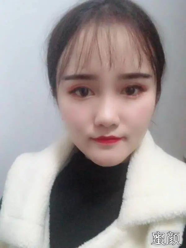 https://img.miyanlife.com/mnt/timg/210225/11394321M-5.jpg 广州南方医院双眼皮手术恢复过程图 知识库 第6张