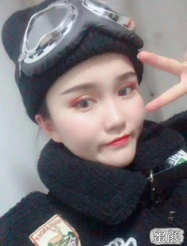 https://img.miyanlife.com/mnt/timg/210225/1139435092-7.jpg 广州南方医院双眼皮手术恢复过程图 知识库 第8张