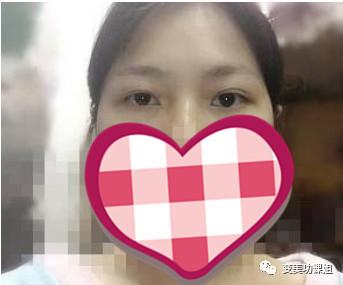 https://img.miyanlife.com/mnt/timg/210224/1THS194-1.jpg 杭州东方整形医院个双眼皮靠谱吗?真实案例 知识库 第2张