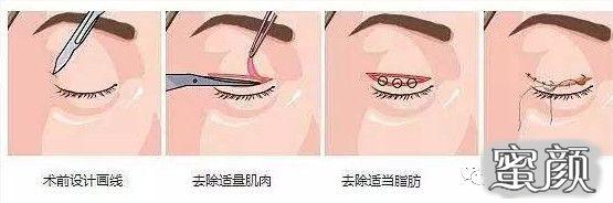 https://img.miyanlife.com/mnt/timg/210224/1121513J7-1.jpg 双眼皮疤痕篇——全切双眼皮术后疤痕问题详解 知识库 第2张