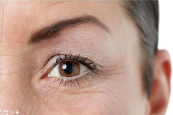 眼睑下垂怎么办 眼睑下垂的病因 眼睑下垂怎么办 眼睑下垂的病因 知识库 第3张