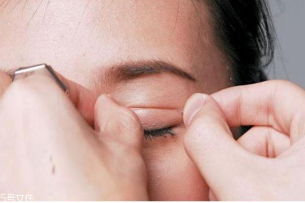 眼睑下垂怎么办 眼睑下垂的病因 眼睑下垂怎么办 眼睑下垂的病因 知识库 第1张