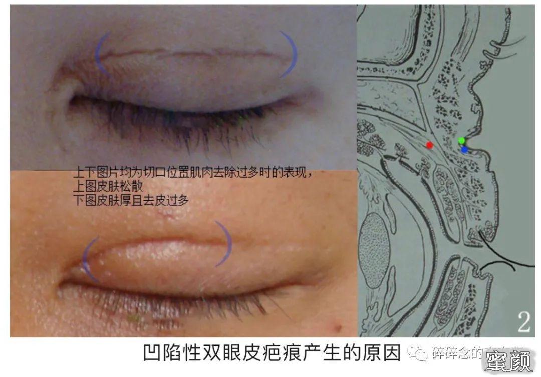 https://img.miyanlife.com/mnt/timg/210224/11215913N-3.jpg 双眼皮疤痕篇——全切双眼皮术后疤痕问题详解 知识库 第4张