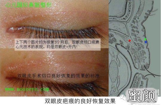 https://img.miyanlife.com/mnt/timg/210224/11215J221-2.jpg 双眼皮疤痕篇——全切双眼皮术后疤痕问题详解 知识库 第3张