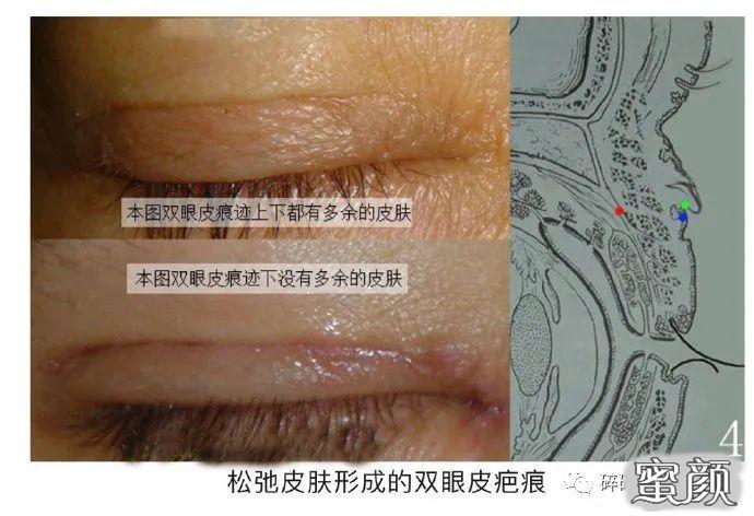 https://img.miyanlife.com/mnt/timg/210224/1122031G9-5.jpg 双眼皮疤痕篇——全切双眼皮术后疤痕问题详解 知识库 第6张