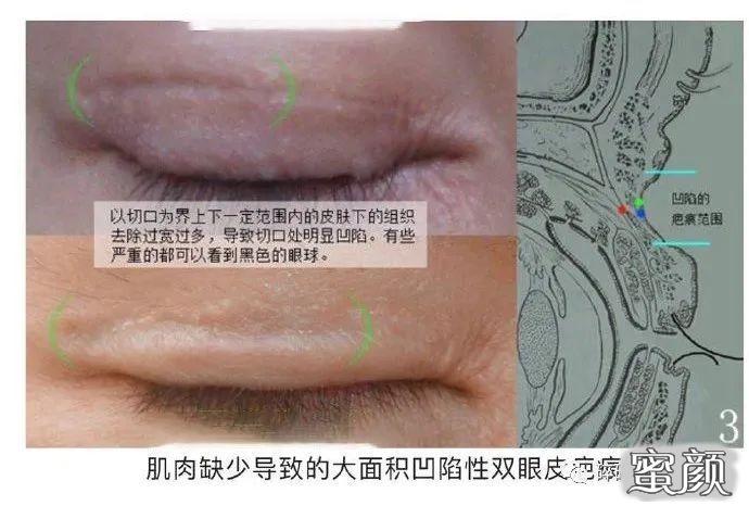 https://img.miyanlife.com/mnt/timg/210224/1122004B3-4.jpg 双眼皮疤痕篇——全切双眼皮术后疤痕问题详解 知识库 第5张