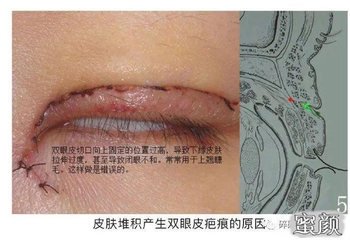 https://img.miyanlife.com/mnt/timg/210224/11220CP5-6.jpg 双眼皮疤痕篇——全切双眼皮术后疤痕问题详解 知识库 第7张