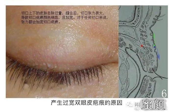 https://img.miyanlife.com/mnt/timg/210224/11220W437-7.jpg 双眼皮疤痕篇——全切双眼皮术后疤痕问题详解 知识库 第8张